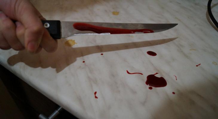 Сыктывкарец обезобразил ножом знакомого, который хотел драться с ним за честь жены