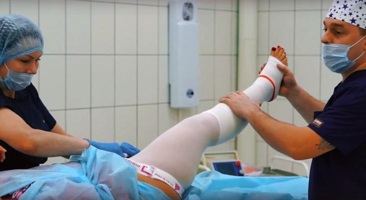 Врач-флеболог о варикозе: можно обойтись без операции