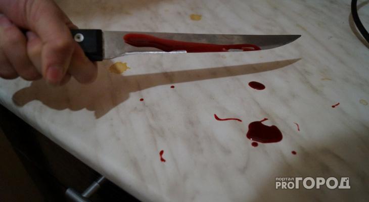 Сыктывкарец исполосовал себя ножом после Нового года