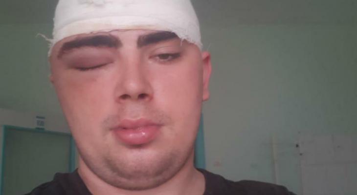 «У меня провалы в памяти, не чувствую половины головы»: сыктывкарец просит помощи после трепанации черепа