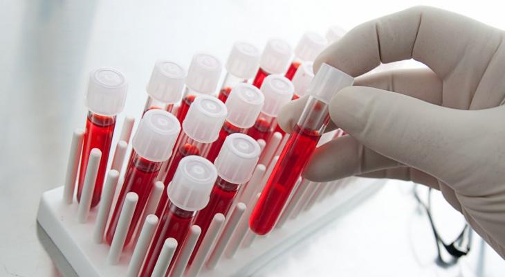 В Коми от коронавируса выздоровело 68 человек